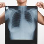 Alerte pollution : les bons réflexes pour se prémunir des risques sur la santé